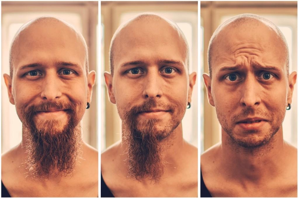 S chemoterapií člověk většinou přijde o vlasy, v mém případě o vousy :).